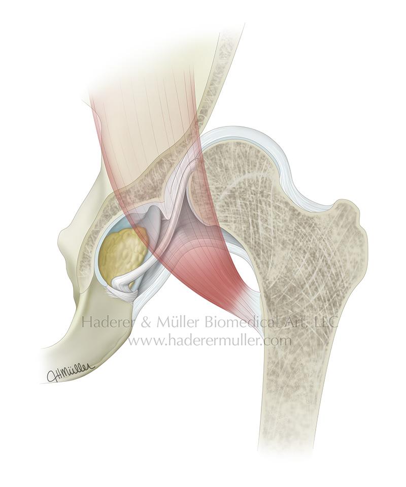 Anatomy of developmental dysplasia of the hip