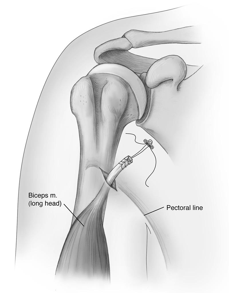 Biceps tenodesis