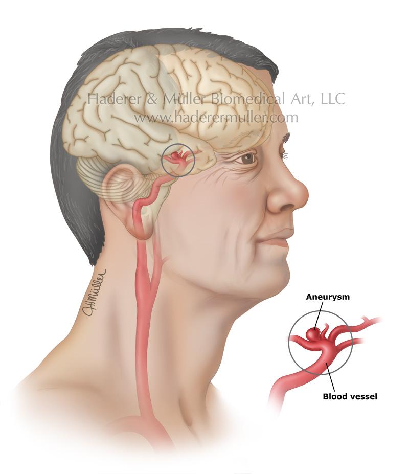 Brain aneurysm PI