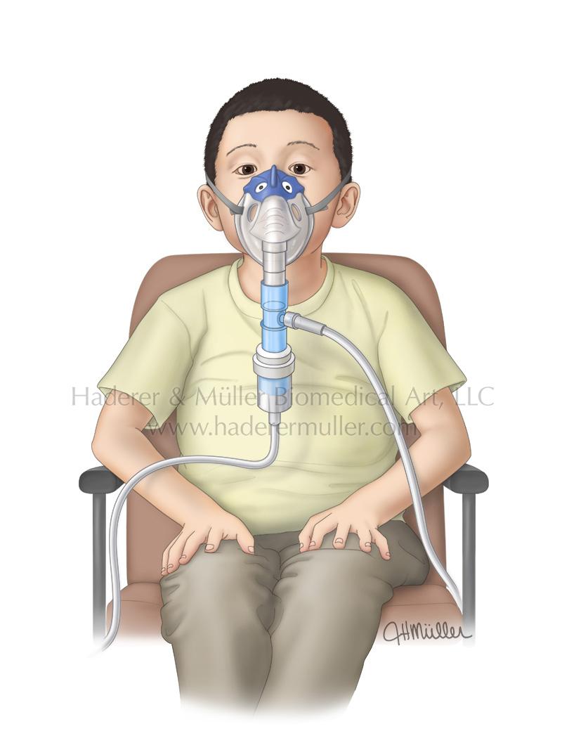 Continuous bronchodilator nebulizations in children