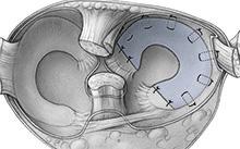 HadererMuller_meniscus