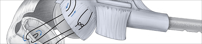 Orthopedic-illustration-HadererMuller