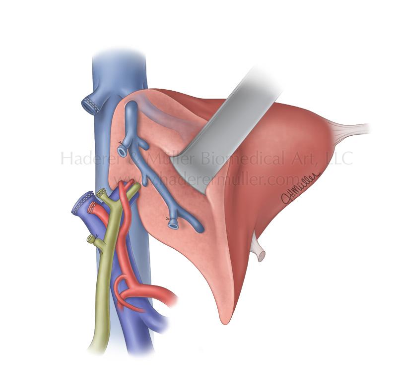 Right hepatectomy