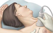HadererMuller.com_breast biopsy