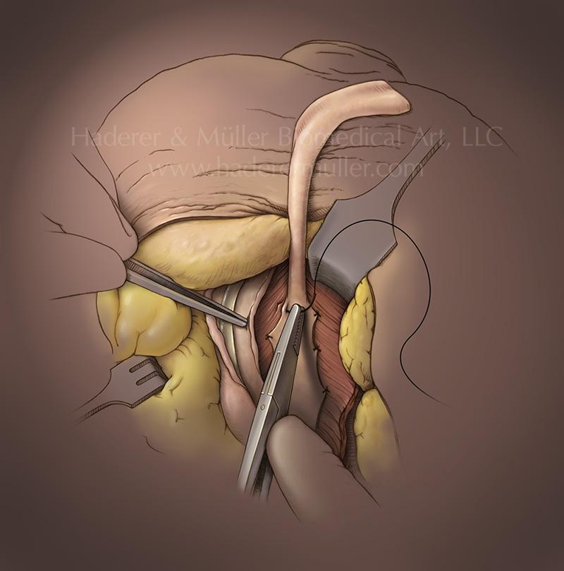 UrethStrictCatalog
