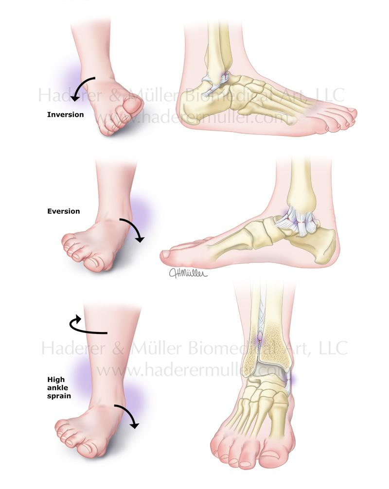 Ankle sprains PI