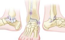 Ankle-sprains-HadererMuller.com