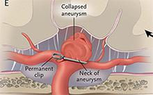 cerebral-aneurysm-HadererMuller.com
