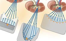 shockwave-lithotripsy-HadererMuller.com